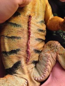 shamus surgery scar